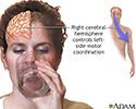 Right cerebral hemisphere - function
