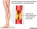 Arteriosclerosis of the extremities