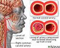 Carotid dissection
