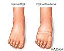 Foot swelling