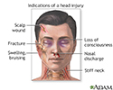 Indications of head injury