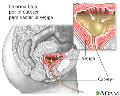 Infecciones Urinarias en la Mujer en la Mujer Ilustración