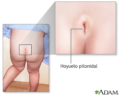 Pilonidal Cyst (Aftercare Instructions) Care Guide Information