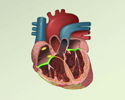 Cardiac conduction system disorders - overview